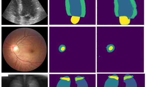 Semi-supervised segmentation of medical images.